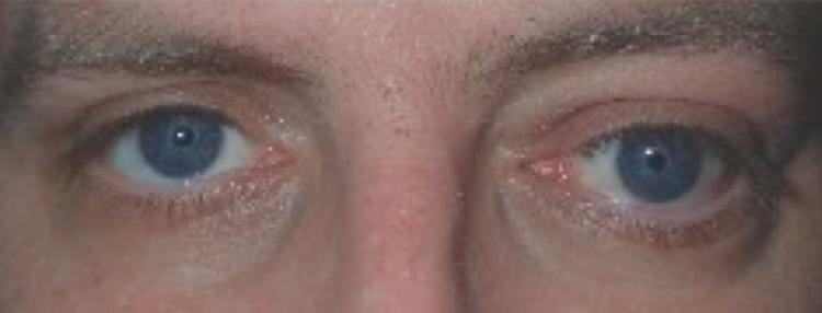 Thyroid Eye Disease Glaucoma Today