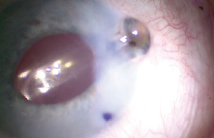 <p>Figure. Iris prolapse in a patient with intraoperative floppy iris syndrome (IFIS).</p>