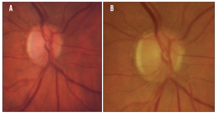 <p>Figure 1. The patient's right optic disc in 1988 (A) and in 2012 (B).</p>