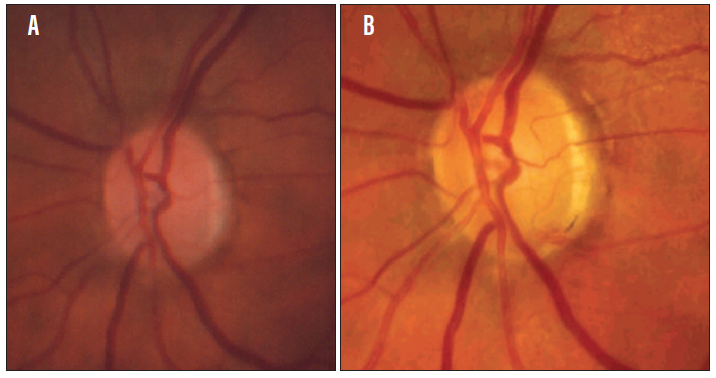 <p>Figure 2. The patient's left optic disc in 1988 (A) and in 2012, with disc hemorrhage at 5:30 (B).</p>