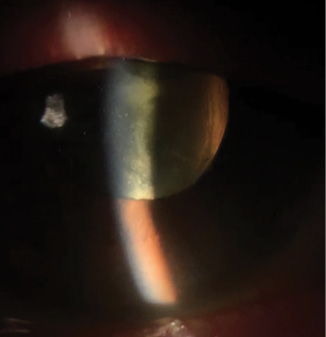 <p>Figure. In malignant glaucoma, the anterior chamber is more uniformly shallow than in acute angle-closure glaucoma.</p>