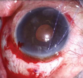 <p>Figure 3. Initial installation of an Ahmed Glaucoma Valve via a scleral tunnel incision.</p>