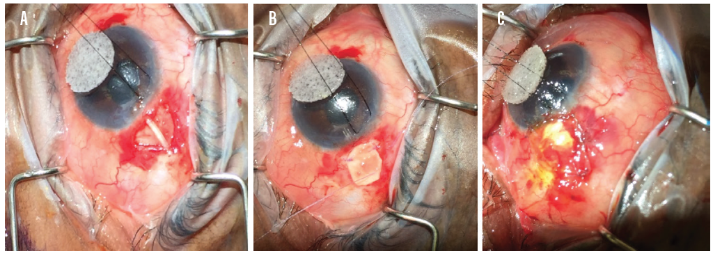 <p>Figure 2. Step-by-step repair of an exposed Ahmed Glaucoma Valve (New World Medical). First, the eroded conjunctiva is dissected (A). A scleral patch graft is then used to cover the exposed tube (B), followed by superficial conjunctival coverage using a conjunctival autograft (C).</p>