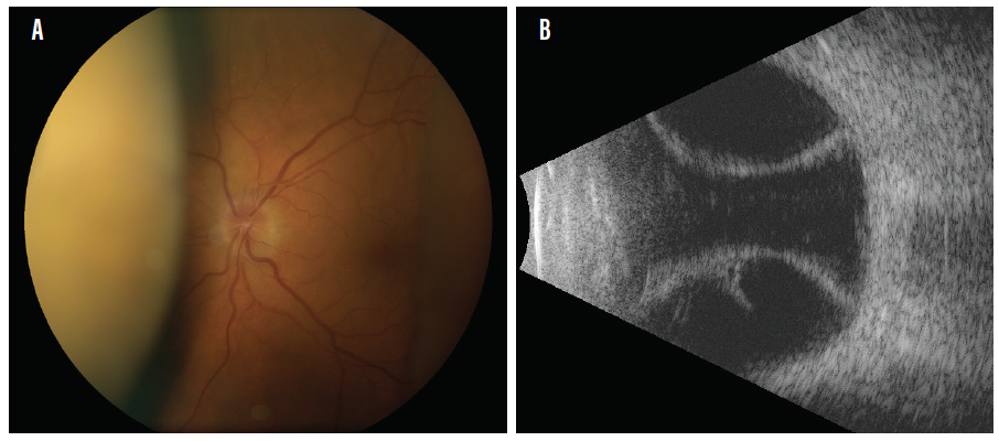 <p>Figure 1. Fundus photography showing a dome-shaped choroidal that occurred in a patient with hypotony after trabeculectomy (A). B-scan ultrasound of the same patient showing moderate echolucent (dark) choroidals due to serous choroidal effusion (B).</p>