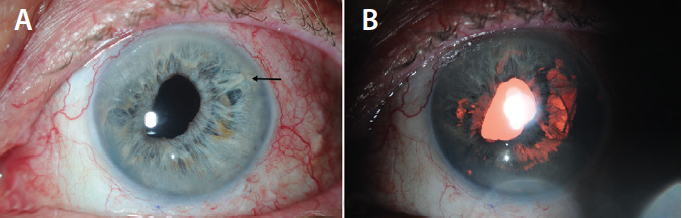 <p>Figure 3. Postoperative anterior segment photographs: Black arrow indicates the position of a visible iris suture (A). Retroillumination image of the same eye demonstrated previous iris transillumination defects (B).</p>