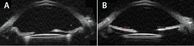 <p>Figure 4. Postoperative UBM showed a well-centered lens. UBM directed in the plane of the iris sutures demonstrated the apposition of the IOL to the posterior iris (A). UBM portrayed the optic in good alignment relative to the posterior iris with minimal tilt (B).</p>