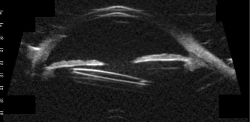 <p>Figure 1. Preoperative UBM imaging showed a malpositioned scleral-fixated IOL causing UGH syndrome.</p>