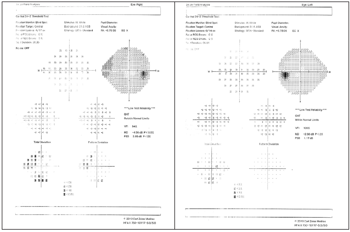 <p>Figure 1. Visual field testing shows moderate changes in the right eye, whereas the visual field of the left eye is essentially full.</p>