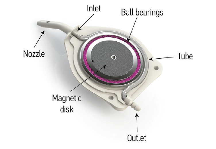 <p>Figure 2. Internal mechanism of the eyeWatch implant.</p>