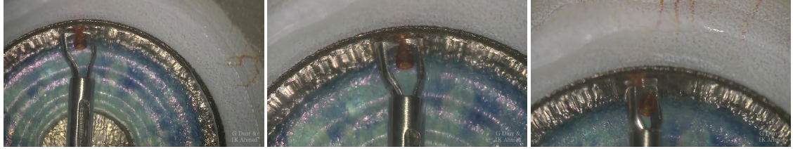<p>Figure 2. The Ahmed Micro Stent Cutter in use in a model eye.</p>