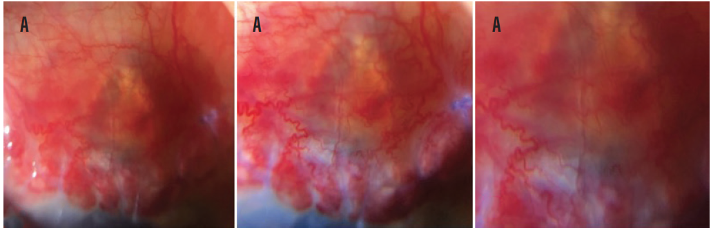<p>Figure 1. Images of a vascularized bleb in the same patient captured with the iPhone 6s (A), the iPhone X with 1x magnification (B), and the iPhone X with 2x magnification (C), all using a 10x clip-on lens.</p>