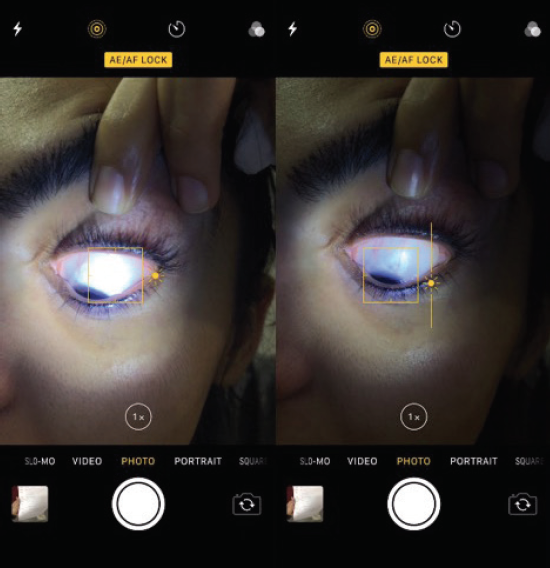 <p>Figure 2. With a native smartphone camera app, the user can adjust the focal point and exposure by tapping on the screen.</p>