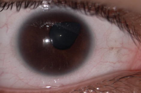 Figure 1. Microcornea and iris coloboma are evident at the slit lamp.