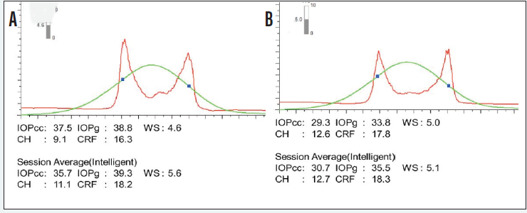 <p>Figure 2. Corneal hysteresis measurements for the right (A) and left (B) eyes.</p>