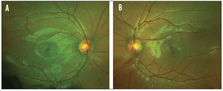 <p>Figure 3. Optic nerves of the right (A) and left (B) eyes.</p>