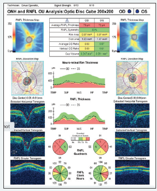 <p>Figure 4. Analysis of the optic nerve head and retinal nerve fiber layer in each eye.</p>